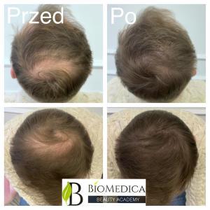 mikropigmentacja skóry głowy u mężczyzn
